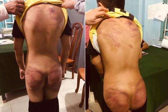 Thầy tu ở Bình Thuận khai nhận đánh đập bé trai 11 tuổi