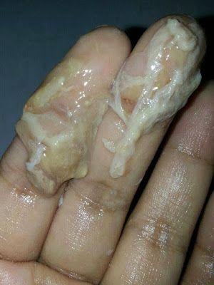 Obat Keputihan Karena Jamur Di Apotik