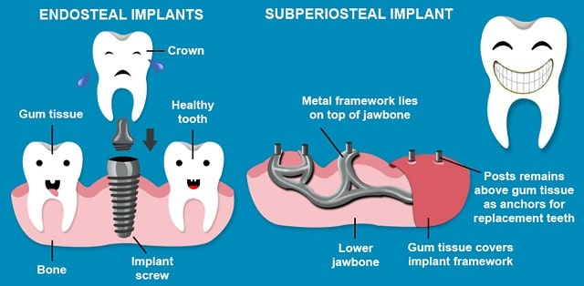 endosteal vs subperiosteal dental implants