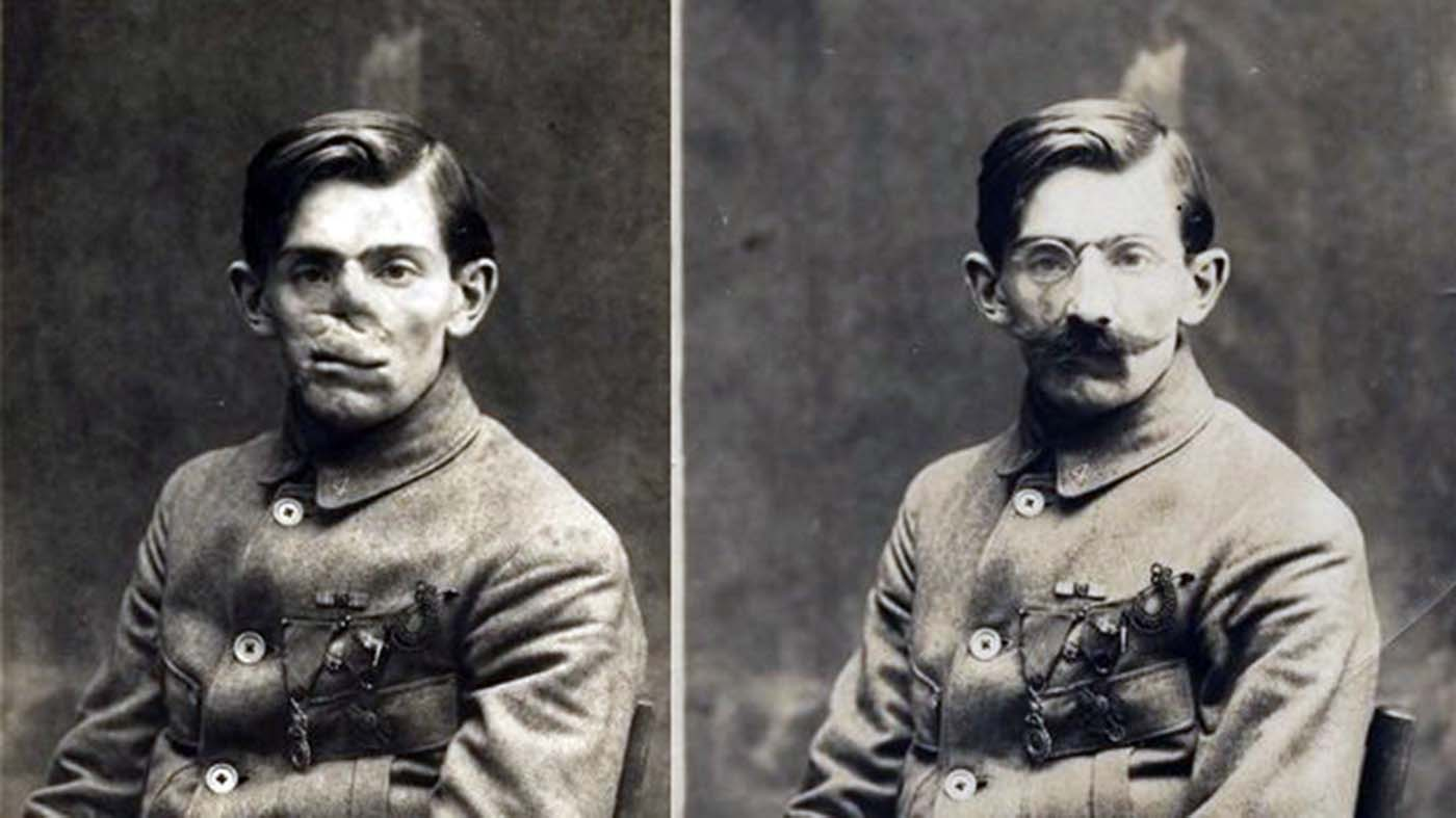 Ladd's papers include these photos of a World War I veteran with and without his mask.