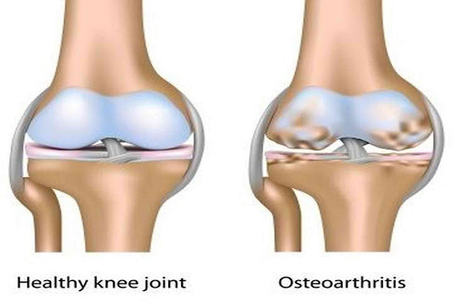 Stage of Knee Osteoarthritis