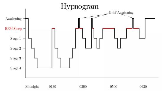 Função soneca do celular não faz bem para a saúde - Hipnograma