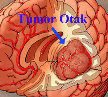 Cara Pengobatan Kanker-Tumor Otak (Brain Tumor ...