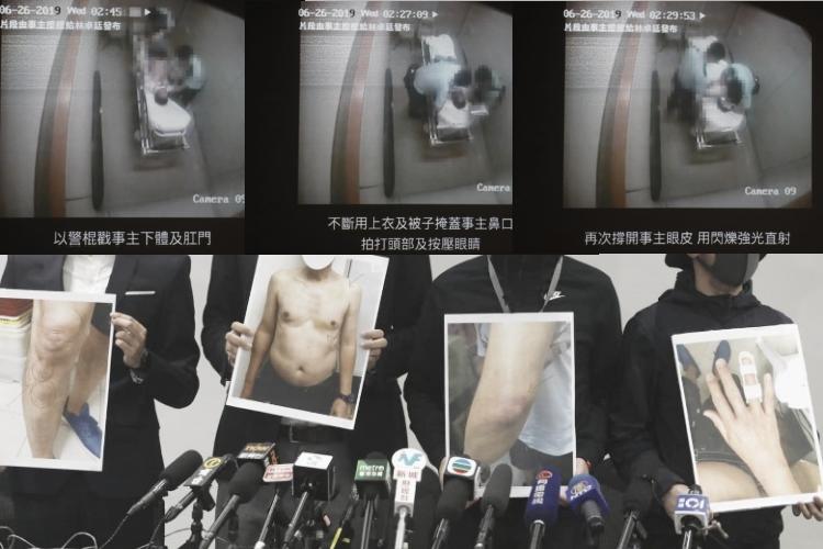 Viral Dua Polisi Tertangkap Kamera Menyiksa Pria Tua yang Mabuk Berat dan Terikat di Ranjang Rumah Sakit di Hong Kong