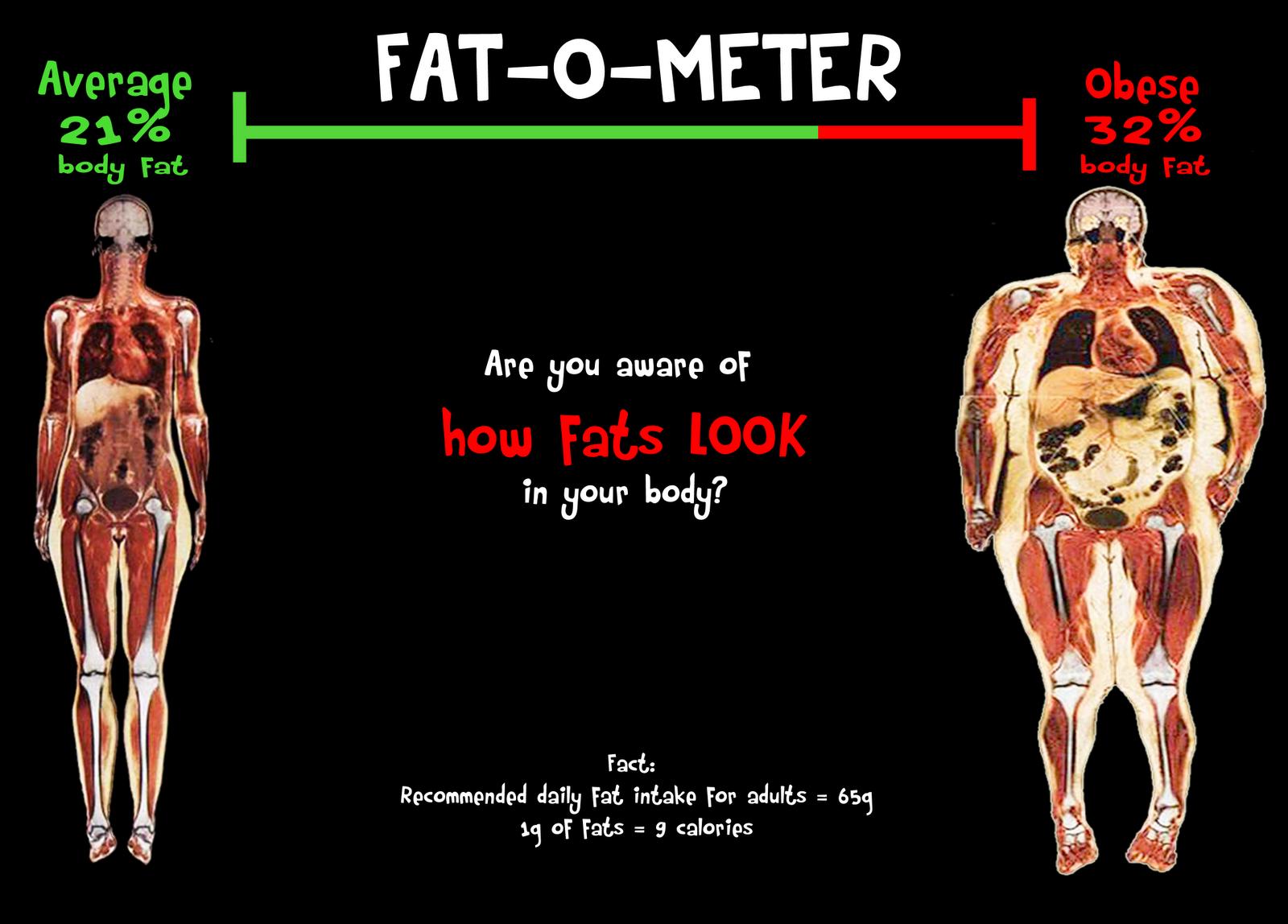 Body Fat Scan 72
