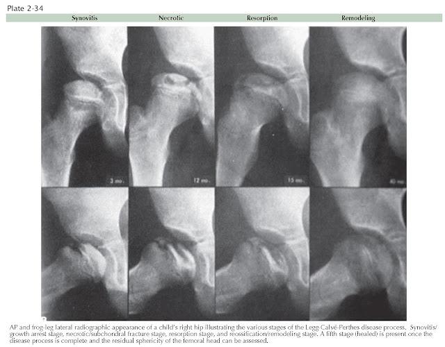 STAGES OF LEGG-CALVÉ-PERTHES DISEASE