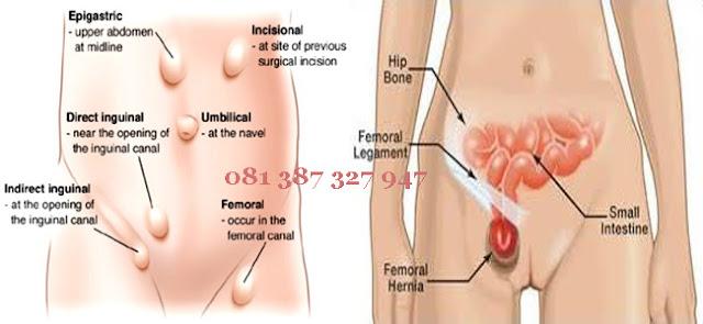 Jenis Penyakit Hernia Pada Wanita