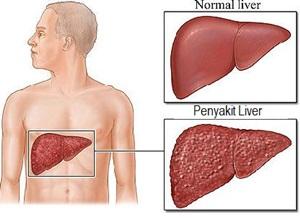 Tanda Tanda Penyakit Liver Yang Sudah Parah
