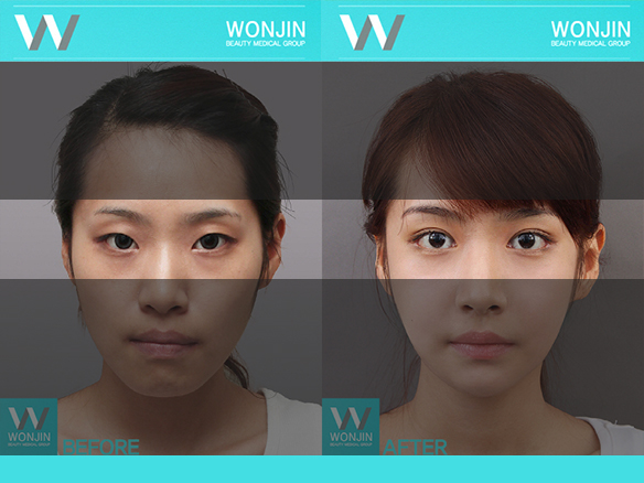 짱이뻐! - Korean Eye Plastic Surgery - Double Eyelid Surgery