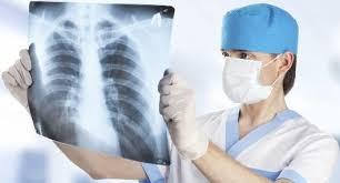 Terapi Pengobatan TBC Paru Sampai Sembuh Tolal