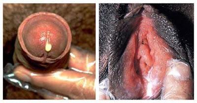 Gambar Penyakit Raja Singa Pada Pria & Wanita