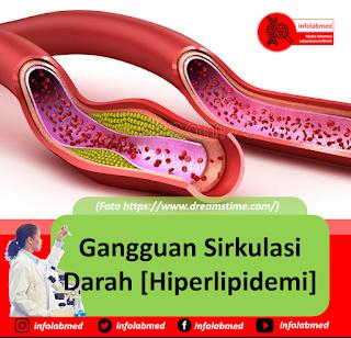 Gangguan Sirkulasi Darah [Hiperlipidemi]