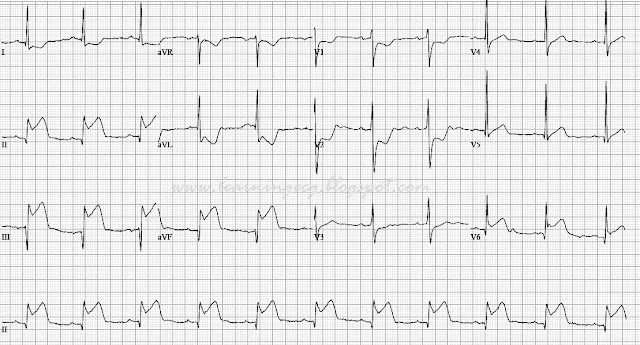 ECG Rhythms: Inferior wall STEMI with lesion in the left