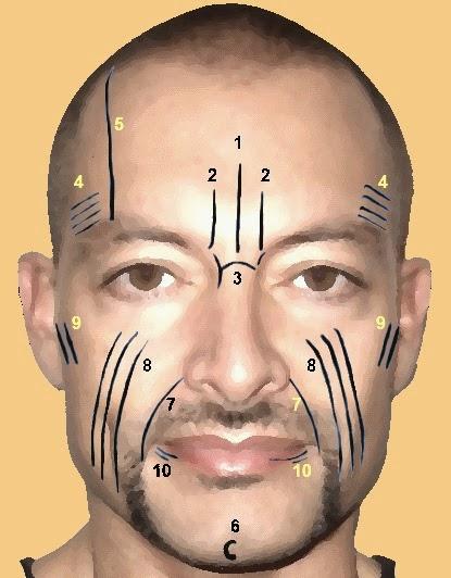 Otras arrugas comunes del rostro