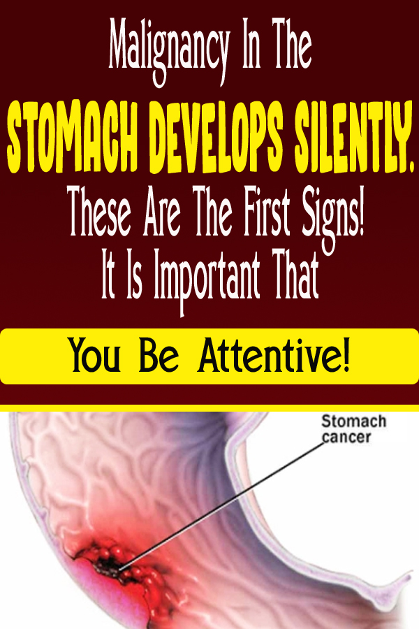 Malignancy In The Stomach Develops Silently. These Are The First Signs! It Is Important That You Be Attentive!