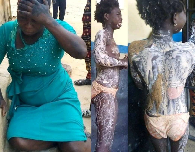 Aunt arrested who poured hot water on niece