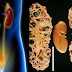 Kidney Failure: Symptoms Your Kidney Is Starting To Fail That You May Not Notice