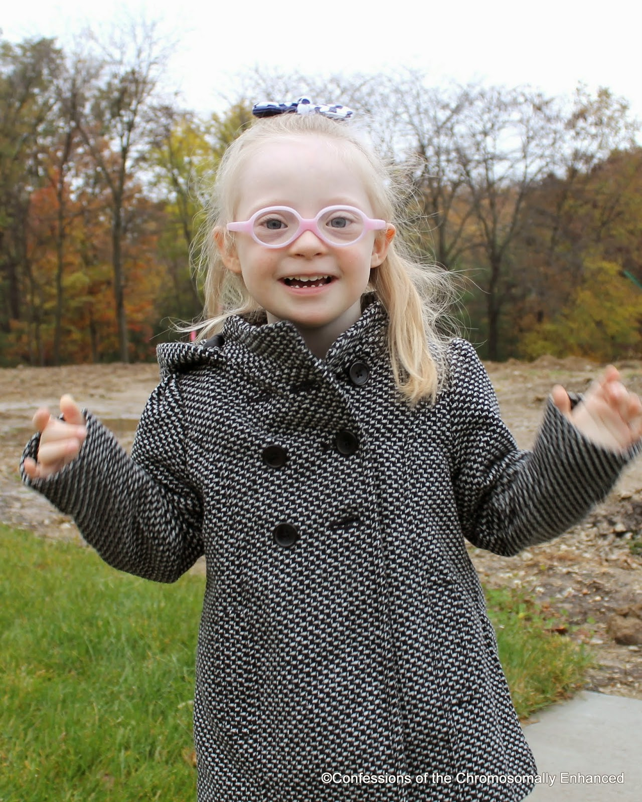 Confessions of the Chromosomally Enhanced: Down syndrome and