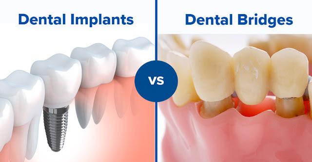 dental implant is better than dental bridge