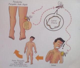 Cara penularan penyakit kaki gajah