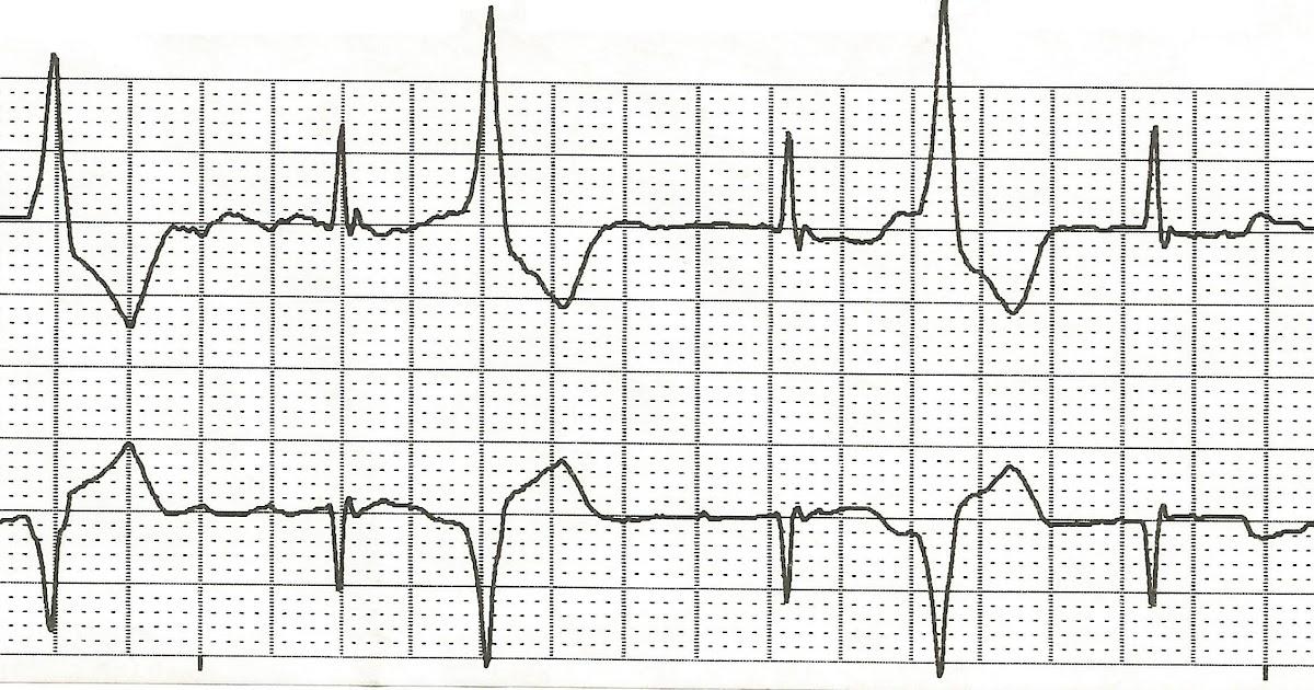 Float Nurse: EKG Rhythm Strips 79
