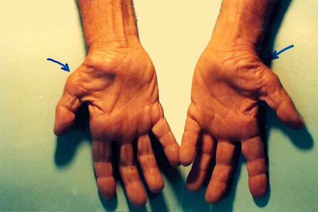 exercitiile de gimnastica medicala pot face adevarate minuni pentru pacientii cu sindrom de tunel carpian