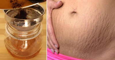 Remove Stretch Marks With Just 3 Items