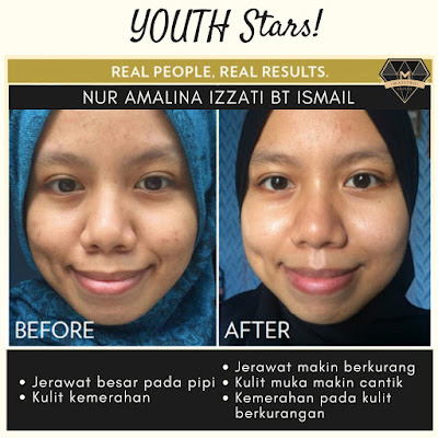 Testimoni Youth Star Shaklee