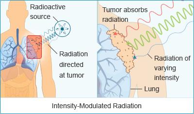 Mesothelioma Radiation
