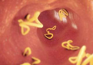 SehatQ Infeksi Cacing Kremi Pada Ibu Hamil, Apakah Berbahaya
