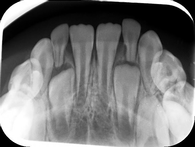 xray of front teeth - photo #16