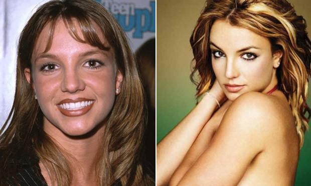 Britney Spears antes e depois da cirurgia no nariz