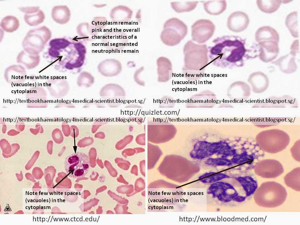 Haematology in a NutShell: Vacuolated Neutrophils Vacuolization Of Neutrophils