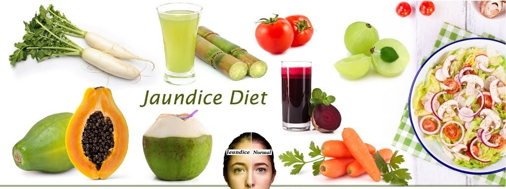 naturally cure jaundice with home remedies