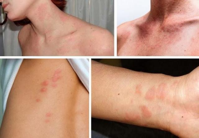 Comment soigner les cloques sur la peau naturellement