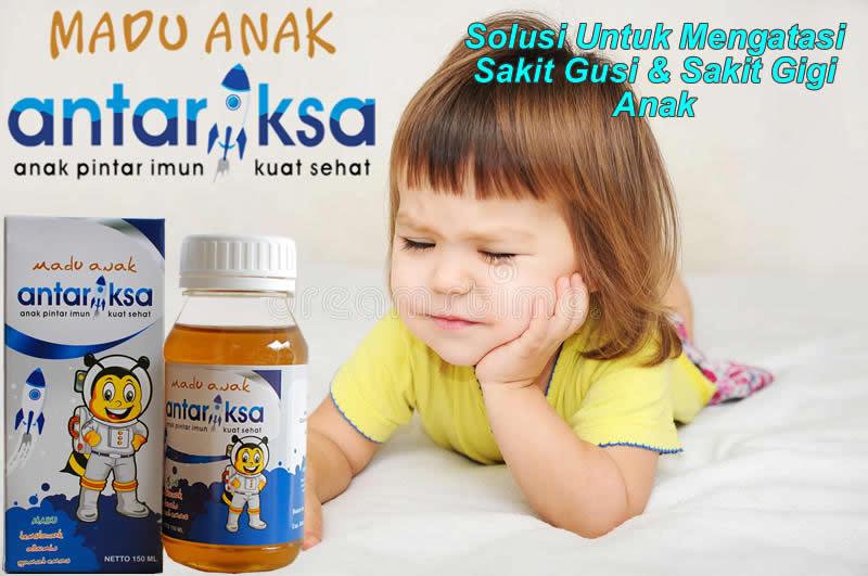 Obat Gusi Bengkak Anak