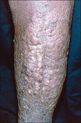 Infection Landscapes: Lymphatic Filariasis
