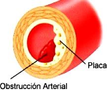 Dibujo alusivo a la obstrucción arterial