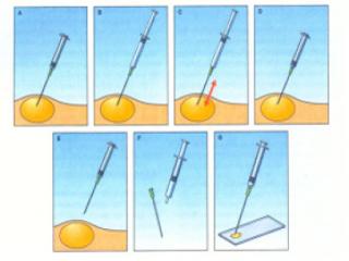Langkah pengambilan sampel FNAB