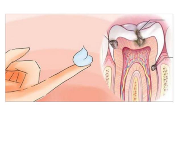 وصفة طبيعية مجربة لمعلاجة مشكلة تسوس الاسنان