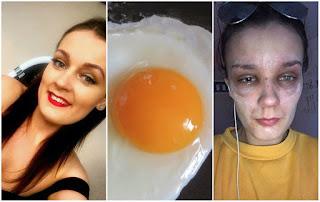 Jovem fica parcialmente cega após ovo explodir no microondas