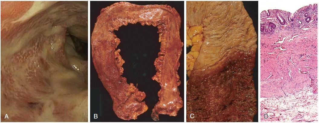pathology of ulcerative colitis