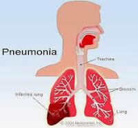 Ramuan Tradisional Untuk Pneumonia
