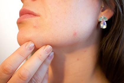 Acne treatment and scar removal using cream