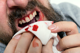 Treating Bleeding Gums