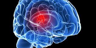 Understanding Brain Cancer