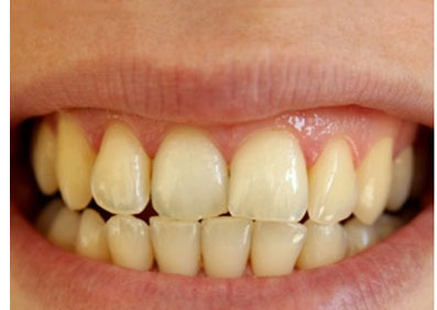 أخطاء يومية تسبب اصفرار الأسنان