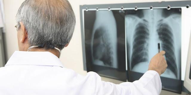 Penyebab, Faktor Resiko dan Gejala Kanker Paru-Paru