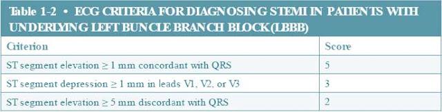 Ecg Criteria for Diagnosing Stemi