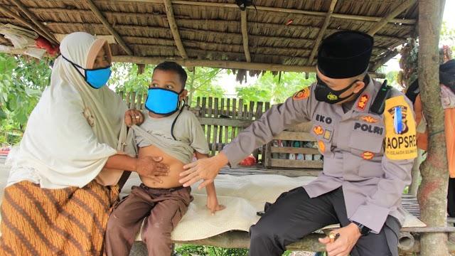 "Jemput ""Kue Surga"", Kapolres Lhokseumawe Kunjungi Penderita Thalasemia di Lhok Krek Sawang"